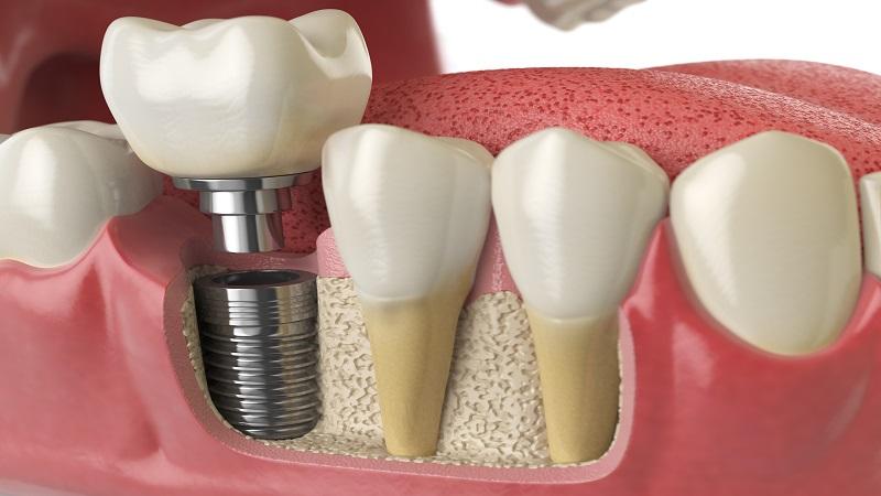 ویژگی ها و مزایا ایمپلنت دندان | بهترین ایمپلنت اصفهان