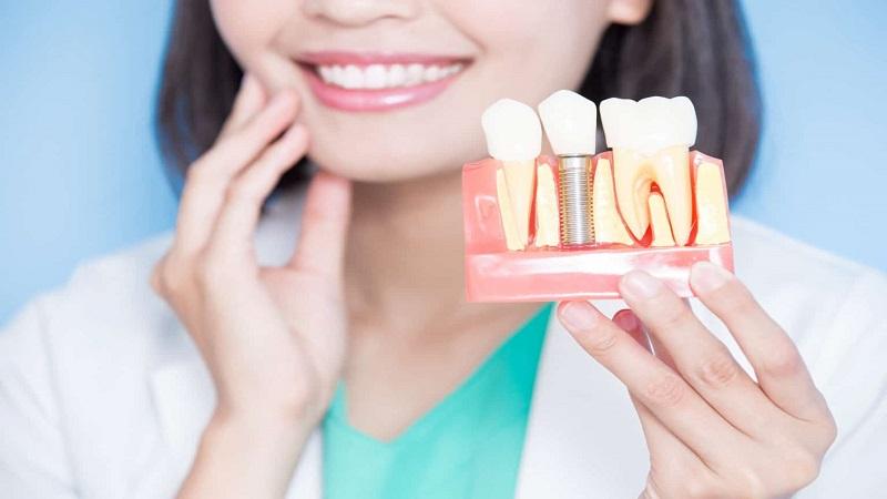 بررسی ایمپلنت های دندانی | بهترین ایمپلنت اصفهان