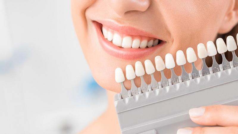 مزایای لمینت دندان | بهترین ایمپلنت اصفهان