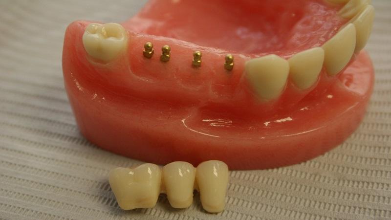 پرسش های پیرامون مینی ایمپلنت | بهترین دندانپزشک اصفهان